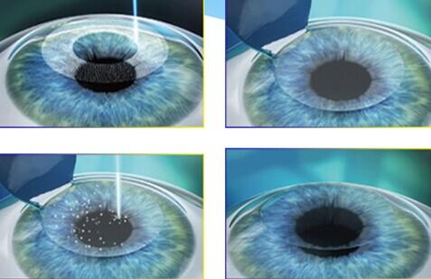 """微创、无瓣""""全飞秒""""激光系统 革新近视手术技术"""