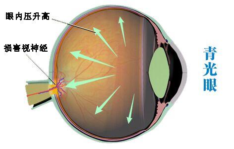 控制眼压高预防失明的10大要点