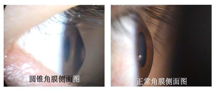 角膜交联—圆锥角膜患者的福音